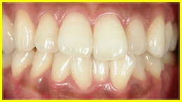 whitening_example_1after