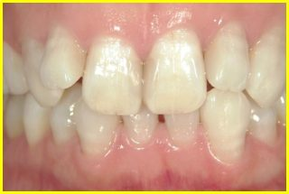 whitening_example_2after