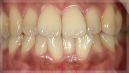 whitening_example_1before