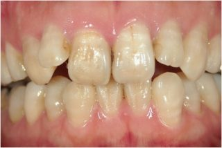 whitening_example_2before